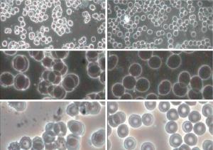 Células sanguíneas, con fondo claro y oscuro