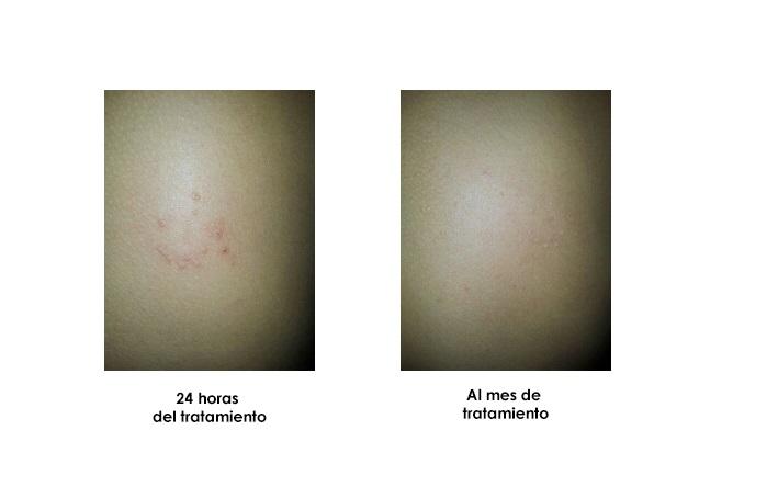 imagen tratamiento herpes infantil