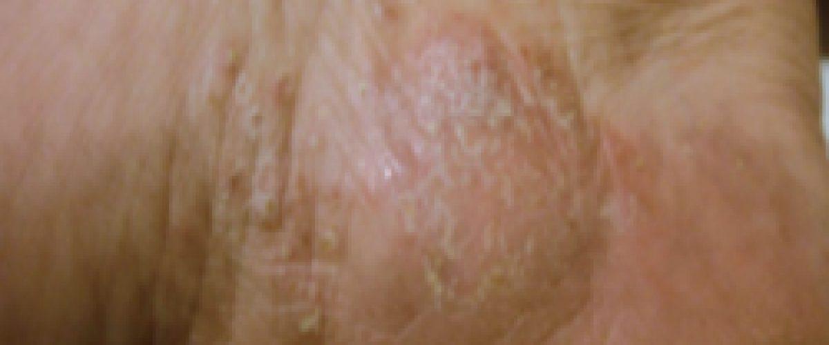 Quimioterapia para una dermatitis (Cathaysa)