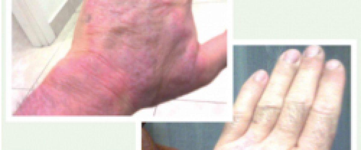 Alergia, asma y dermatitis atópica (Periklis)