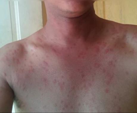 Testimonio: Alergia generalizada crónica en todo el cuerpo