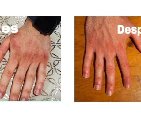 Artrin crema y Stimaral la solución a los problemas visibles en las manos